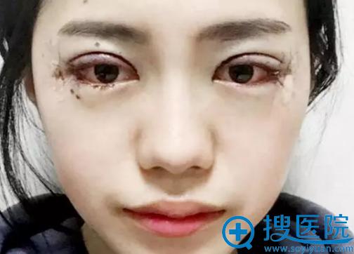 全切双眼皮手术第2天恢复照