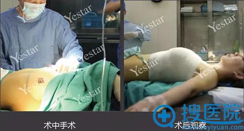 武汉艺星隆胸术前术后即可对比