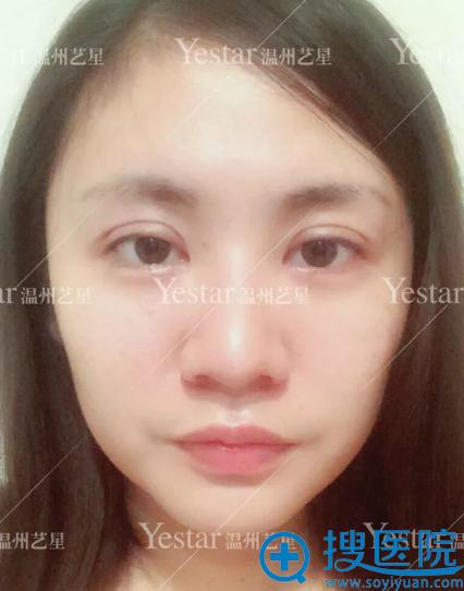 艺兴割双眼皮第1天恢复效果图