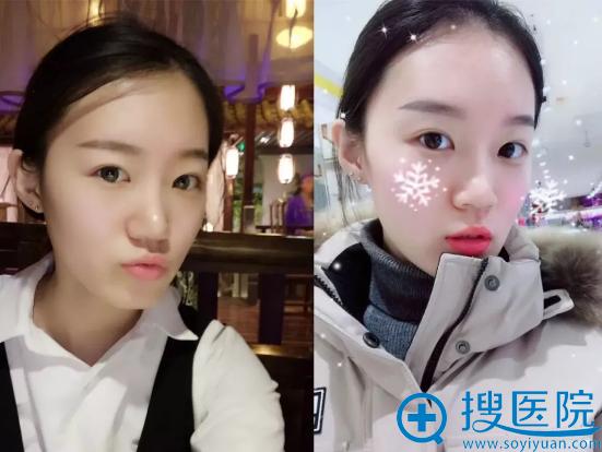 北京艺星超皮秒祛斑真人案例