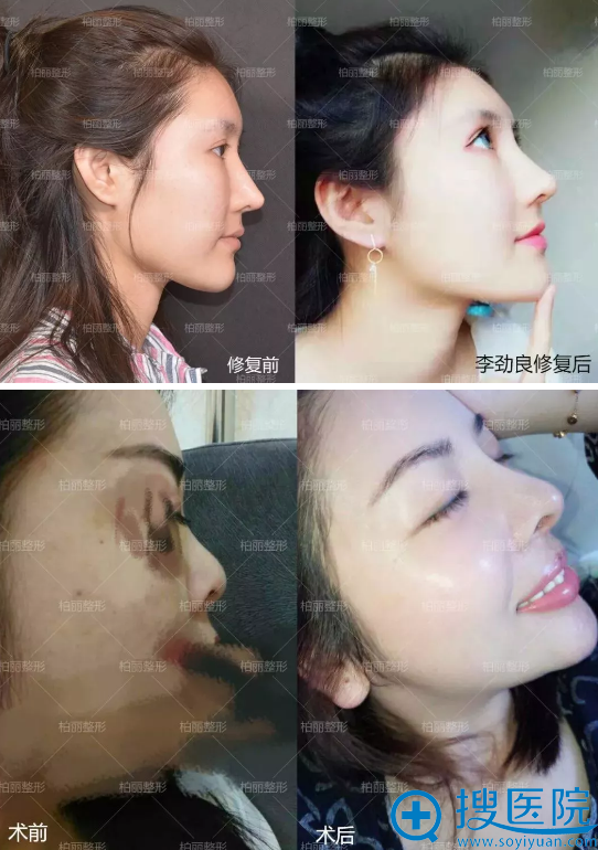 北京柏丽整形隆鼻失败修复案例