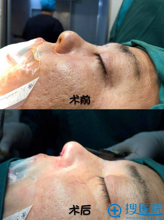何栋良院长鼻基底填充和隆鼻案例