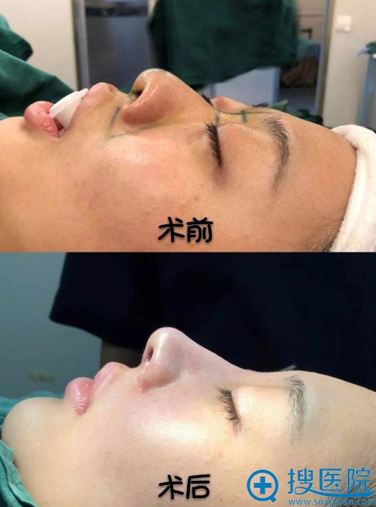 知名鼻整形医生郭明银隆鼻案例