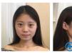 选择西安美立方整形医院李旭平医生做完隆鼻后的我美出了新境界