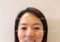 40岁如何找回青春 德阳东美奥克拉面部脂肪填充+祛眼袋经历分享