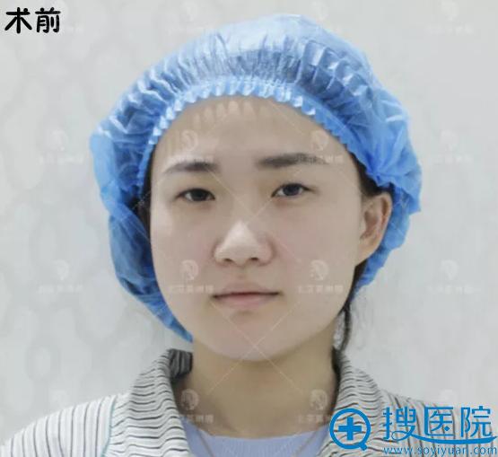 在北京莫琳娜做双眼皮手术前照片