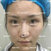 成功用鼻综合修复手术告别失败的2017 选择北京韩啸鼻子做得好