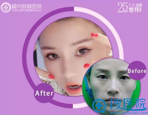 福州鼓楼双眼皮手术真人案例