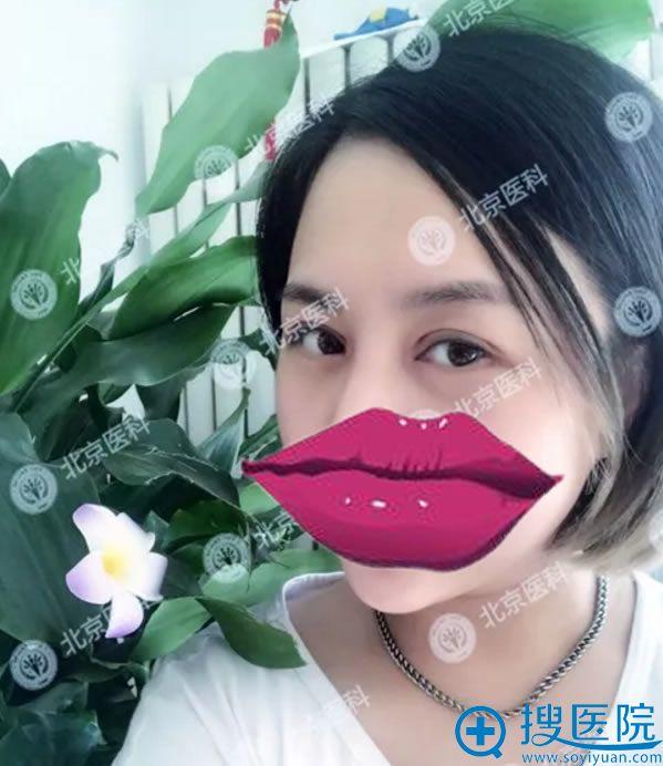 北京医科整形双眼皮7天恢复图片