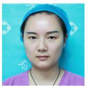上周去郑州华山整形医院找胡斌医生割了双眼皮13天就恢复自然了