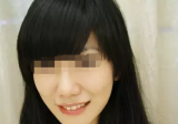 在南京康美注射玻尿酸填充法令纹 爱笑留下痕迹不见了