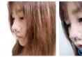 趁着放假找重庆西南医院毕胜医生做了鼻综合隆鼻手术