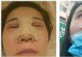 玻尿酸隆鼻失败的我找上海华晋医疗孙建斌医生做了膨体隆鼻手术