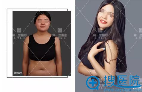 下颌缘吸脂+腰腹吸脂术前术后对比照片