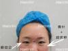 济南韩式眼鼻综合全面部打造真人案例对比照见证女神的诞生