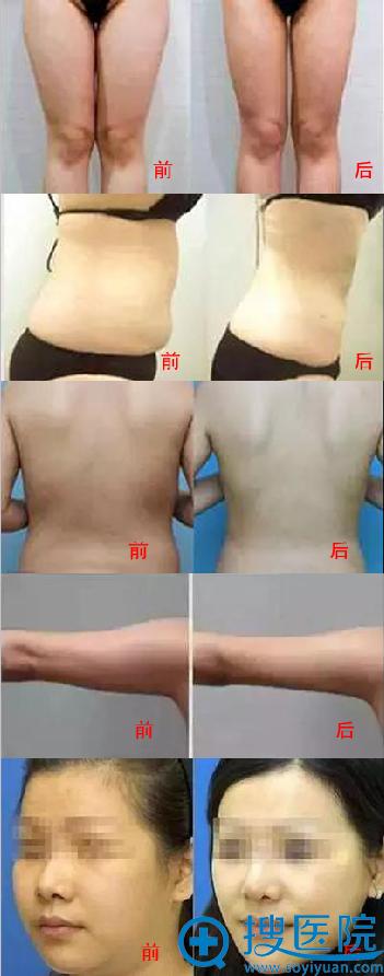 激光溶脂术前术后对比