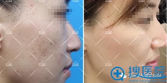 苏州美莱超皮秒祛斑皮肤变化对比图