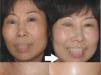 想要理想水嫩美肌 重庆时光水光针可以缓解肌肤危机效果怎样?