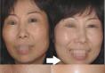 重庆时光整形医院打可缓解肌肤危机,案例恢复效果怎么样