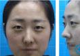 苏州爱思特孙颖双眼皮+开内外眼角术后半年睁眼闭眼恢复照一览