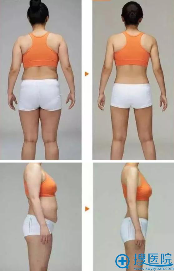 吸脂术前术后对比