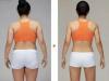 胖子减肥也有春天 花9999元即可在重庆星宸做吸脂手术了