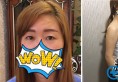 成都星尚美王平切开双眼皮+假体隆胸手术 15天就让我变得不一样