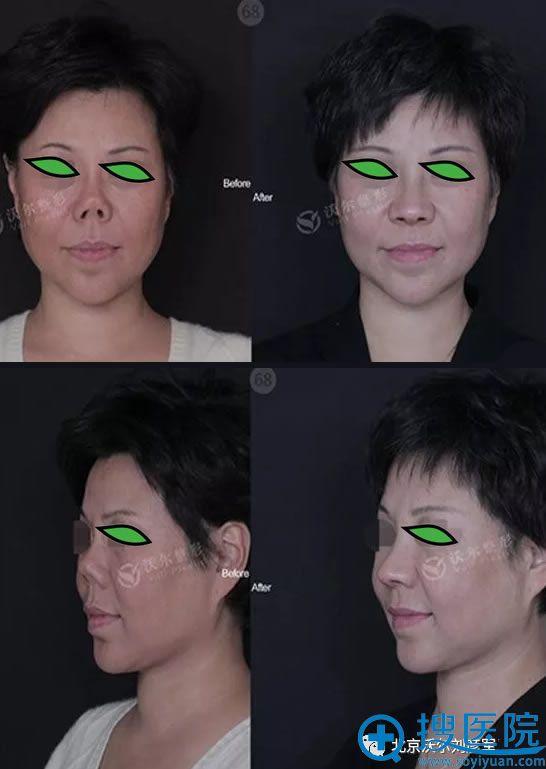 沃尔刘彦军鼻畸形修复效果