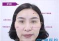 30岁宝妈在济南瑞丽通过面部脂肪填充找回青春