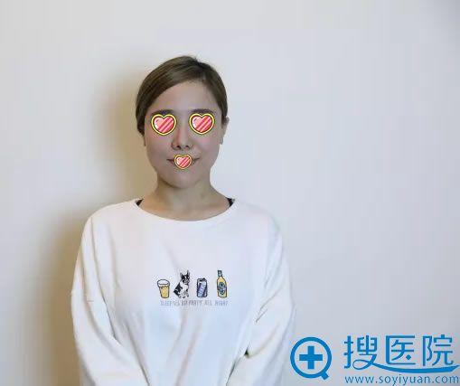 两次鼻综合整形手术失败的照片