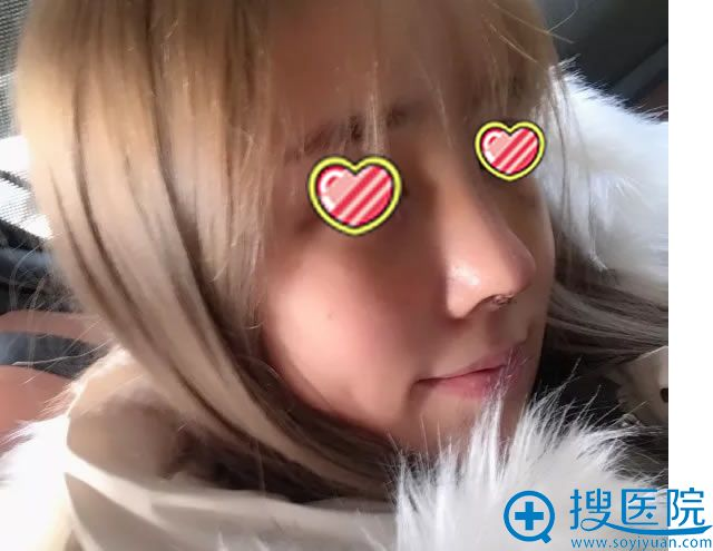 杭州艺星鼻综合修复手术第7天