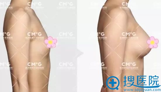自体脂肪隆胸手术16天效果对比图