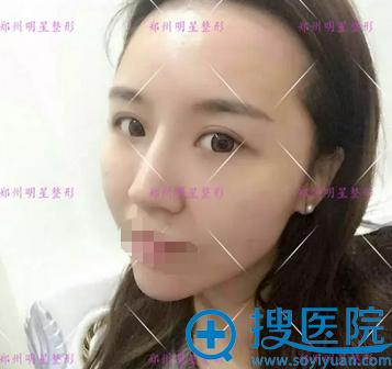 郑州明星面部脂肪填充12天恢复照