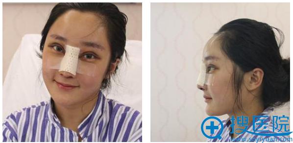 吴应凯医生给我做双眼皮和隆鼻第二天