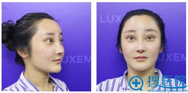 在南京连天美做完双眼皮隆鼻8天自拍