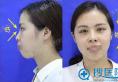 桂林叶氏嘉美叶向东假体隆鼻+假体丰下巴术后恢复效果分享
