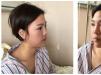 面诊了西安美立方和高一生后选择李旭平做了面部自体脂肪填充