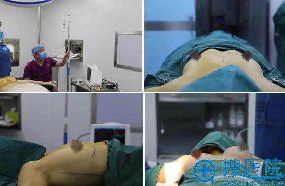 华颜美五维美胸手术过程图