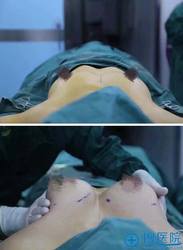 王姐做假体隆胸手术即刻效果对比图