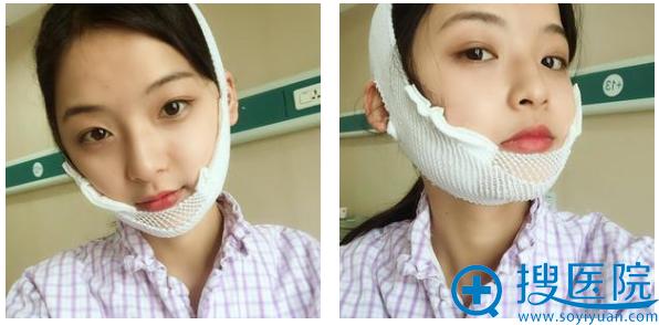 找上海华美李志海做下颌角5天恢复情况