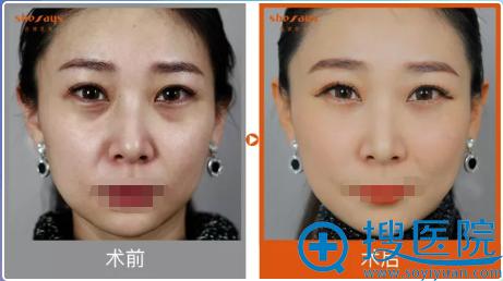 成都西婵熊猫针+玻尿酸填充面部术后效果