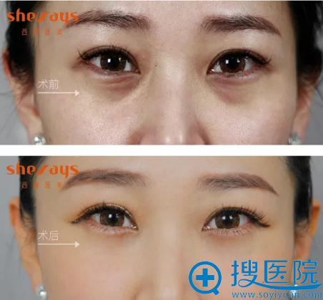 成都西婵祛黑眼圈术前术后对比