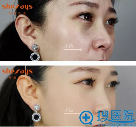四川西婵玻尿酸填充面部术后对比照
