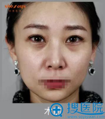 术前黑眼圈细纹严重、面部下垂