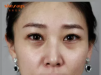 成都西婵熊猫针去黑眼圈+玻尿酸填充面部 一个月她就不一样了