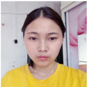 距离我找重庆华美整形医院杨丽萍医生割完双眼皮已经8天了