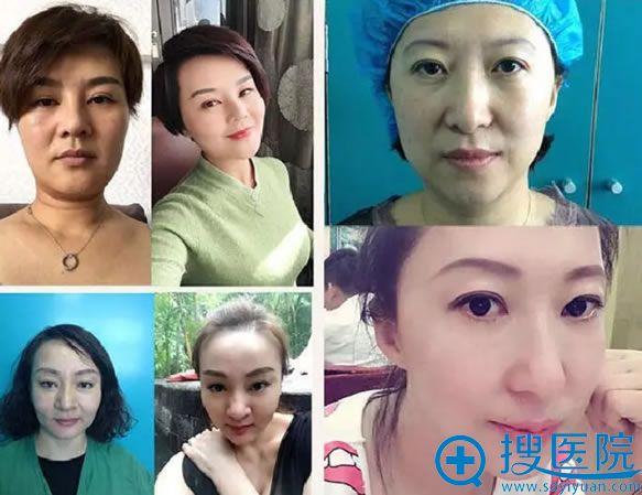 北京丽星面部线雕提升案例