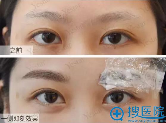纹眉前与术后一侧对比