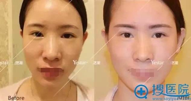 咨询医生纹眉前后对比