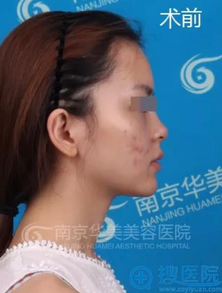 在南京华美做鼻综合前的照片